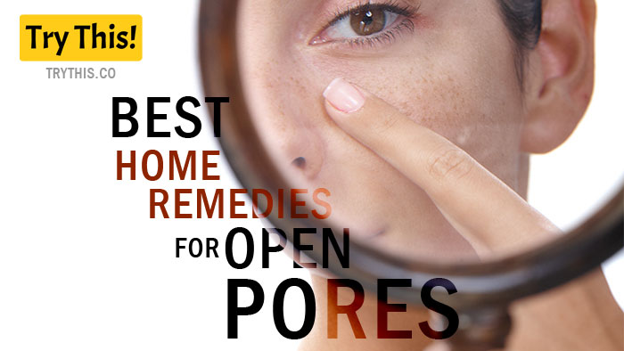 Best Home Remedies for Open Pores