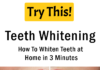 Teeth Whitening: How To Whiten Teeth at Home in 3 Minutes