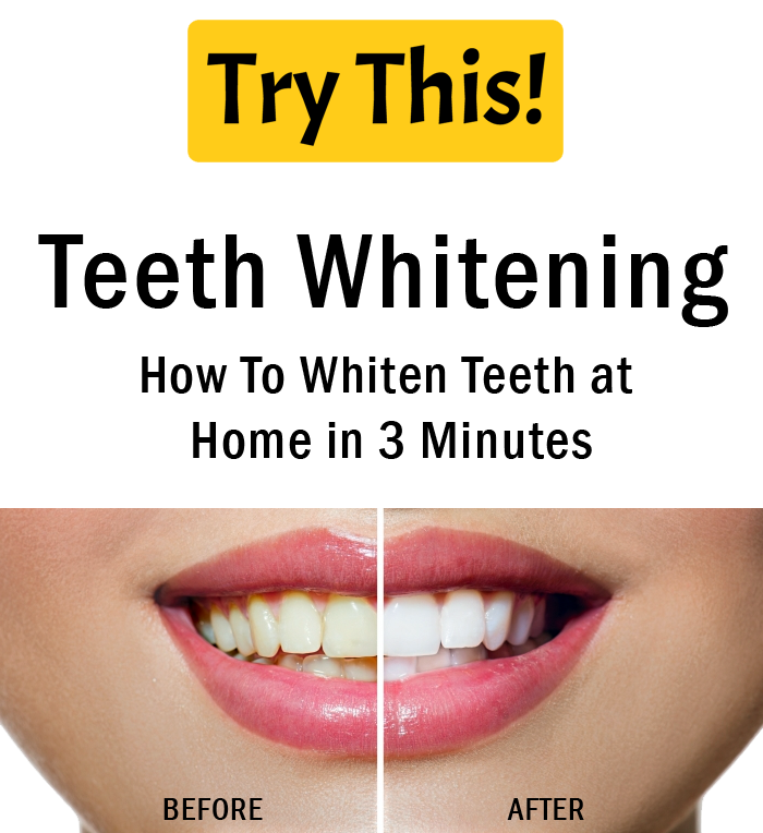 Best Teeth Whitening: How To Whiten Teeth At Home In 3