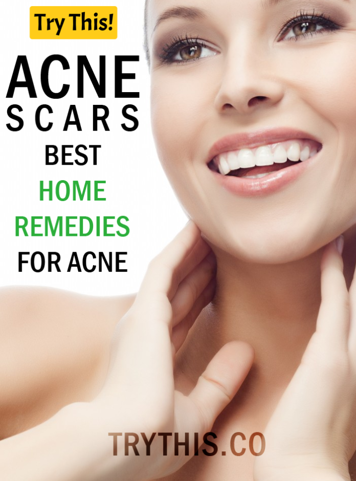 Acne Scars: Best Home Remedies for Acne