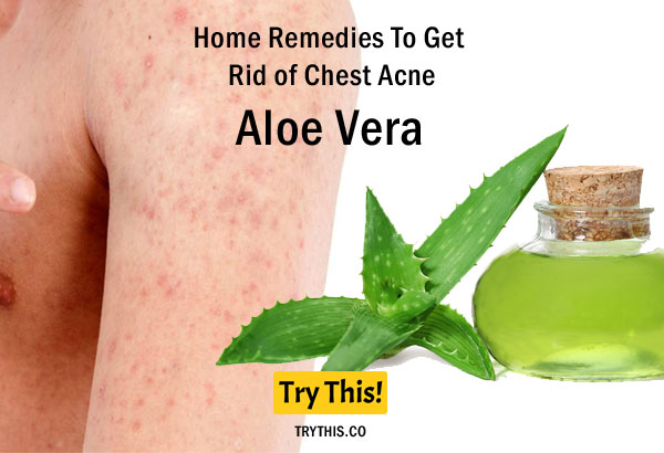 Aloe Vera as a Home Remedies To Get Rid of Chest Acne