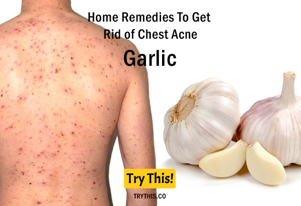 Garlic as a Home Remedies To Get Rid of Chest Acne