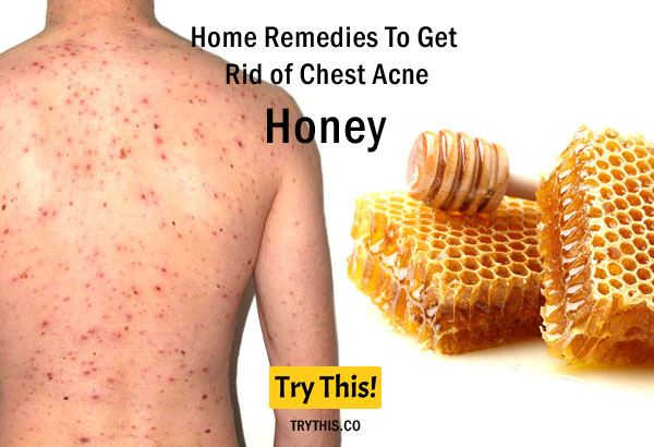 Honey as a Home Remedies To Get Rid of Chest Acne