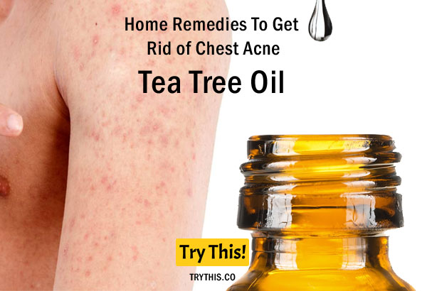 Tea Tree Oil as a Home Remedies To Get Rid of Chest Acne