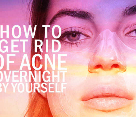 Natural Overnight Acne Treatments