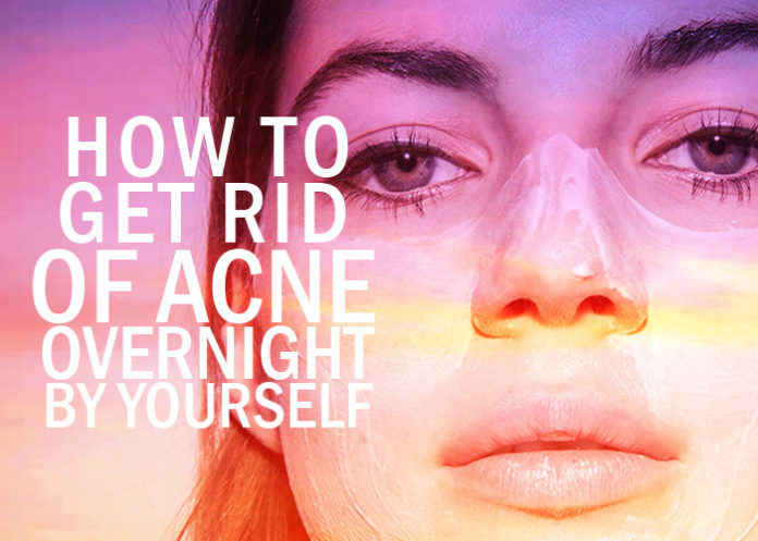 How to Get Rid of Acne Overnight by Yourself