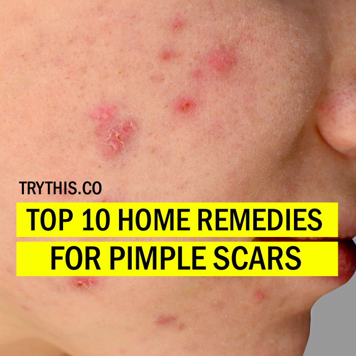 How to Get Rid of Pimple Scars Top 10 Home Remedies for Pimple Scars