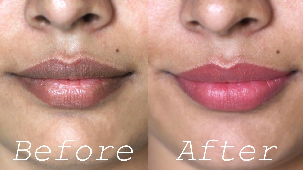 Top 10 Home Remedies for Dark Lips
