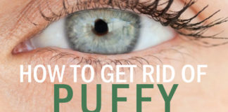 How to Get Rid of Puffy Eyes