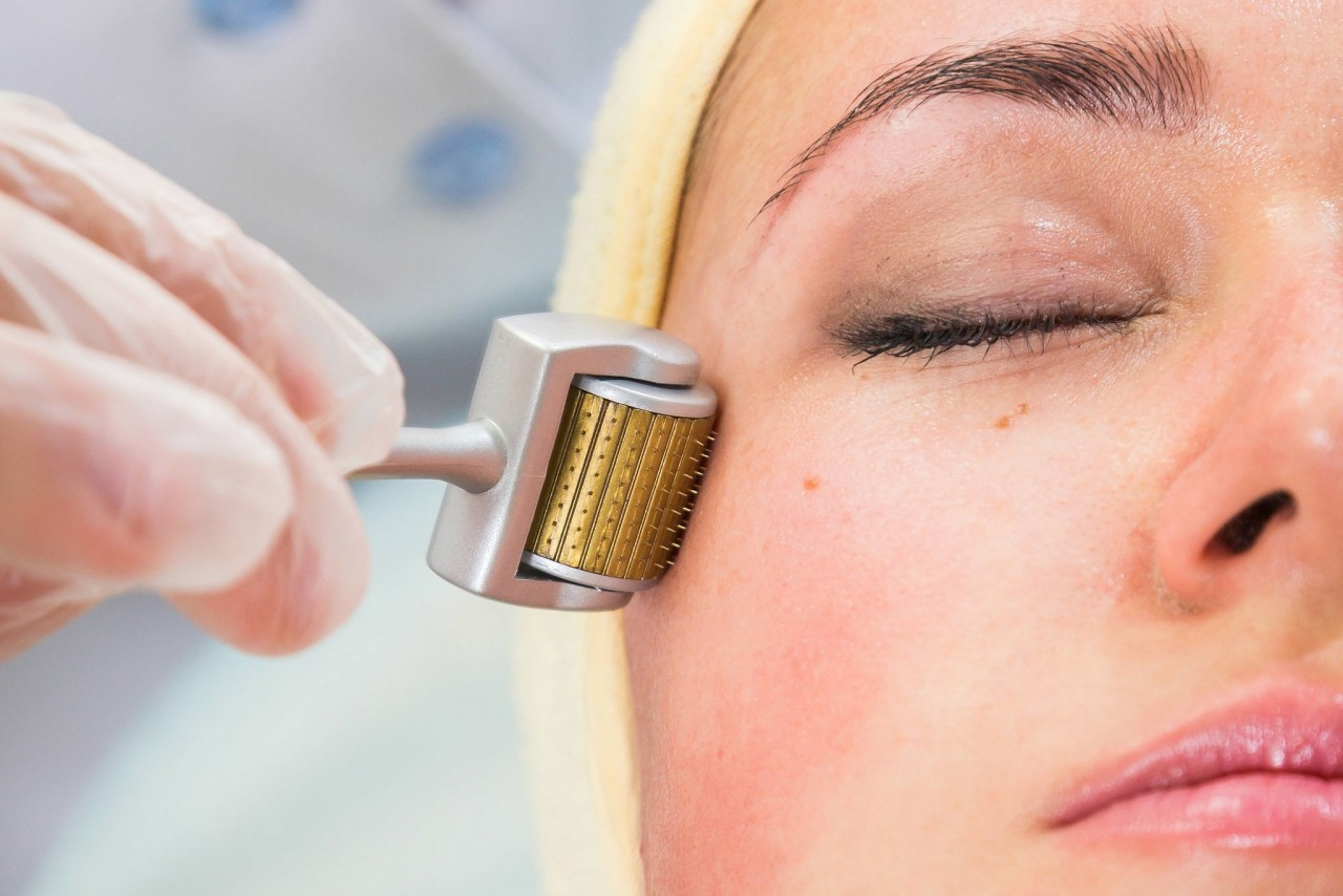 Micro Needling Treatment at Home