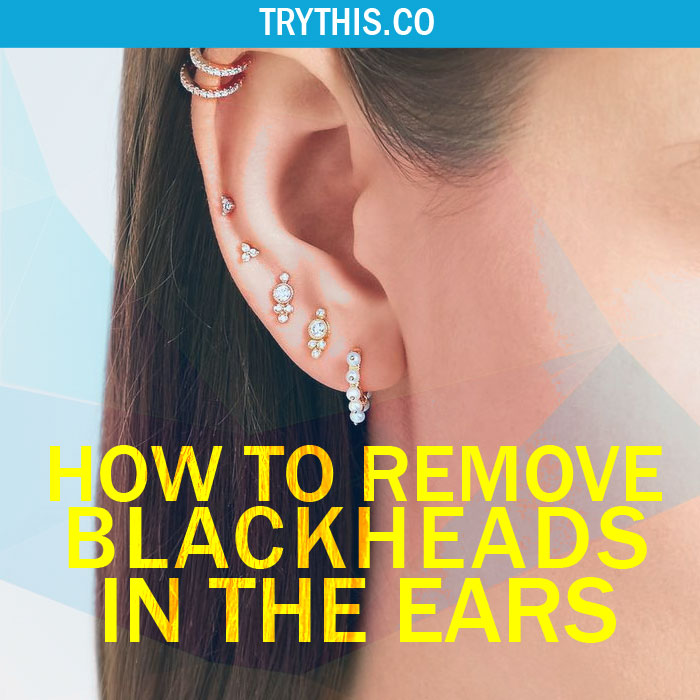 How to Get Rid of Blackheads in the Ears