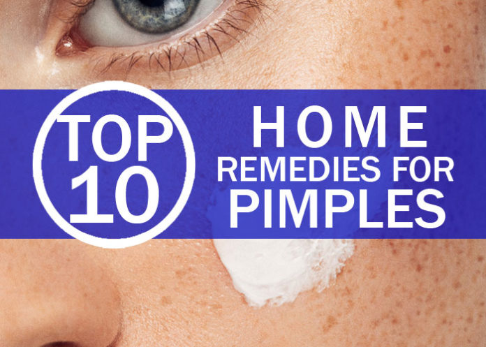 Top 10 Home Remedies for Pimples