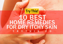 Dry Itchy Skin? 10 Best Home Remedies for Dry Itchy Skin
