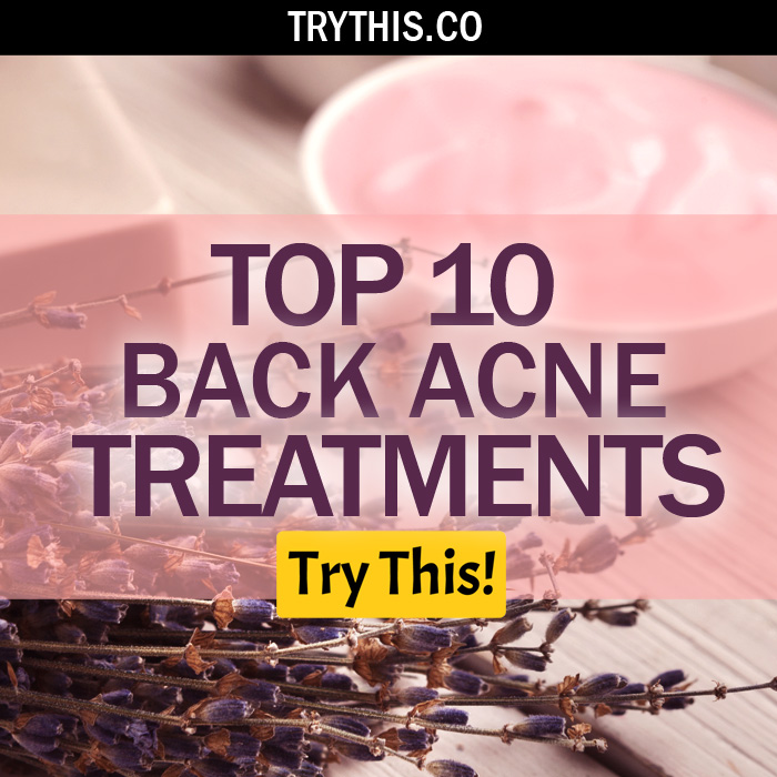 Top 10 Back Acne Treatments