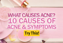 What Causes Acne? 10 Causes of Acne & Symptoms