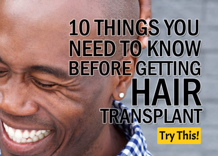 10 Things You Need to Know Before Getting Hair Transplant